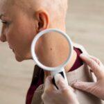 El cáncer de piel, vigente en tiempo de coronavirus