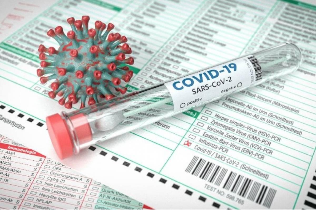 Salud reporta 19 muertes adicionales por COVID y sobre 600 nuevos casos